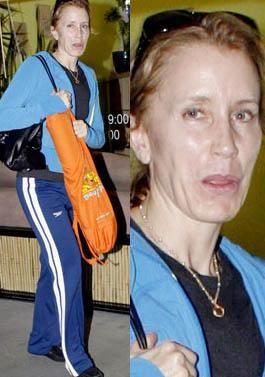 50'li yaşlarını geride bırakan Felicity Hoffman da fazla zayıflığın kurbanı olmuş.